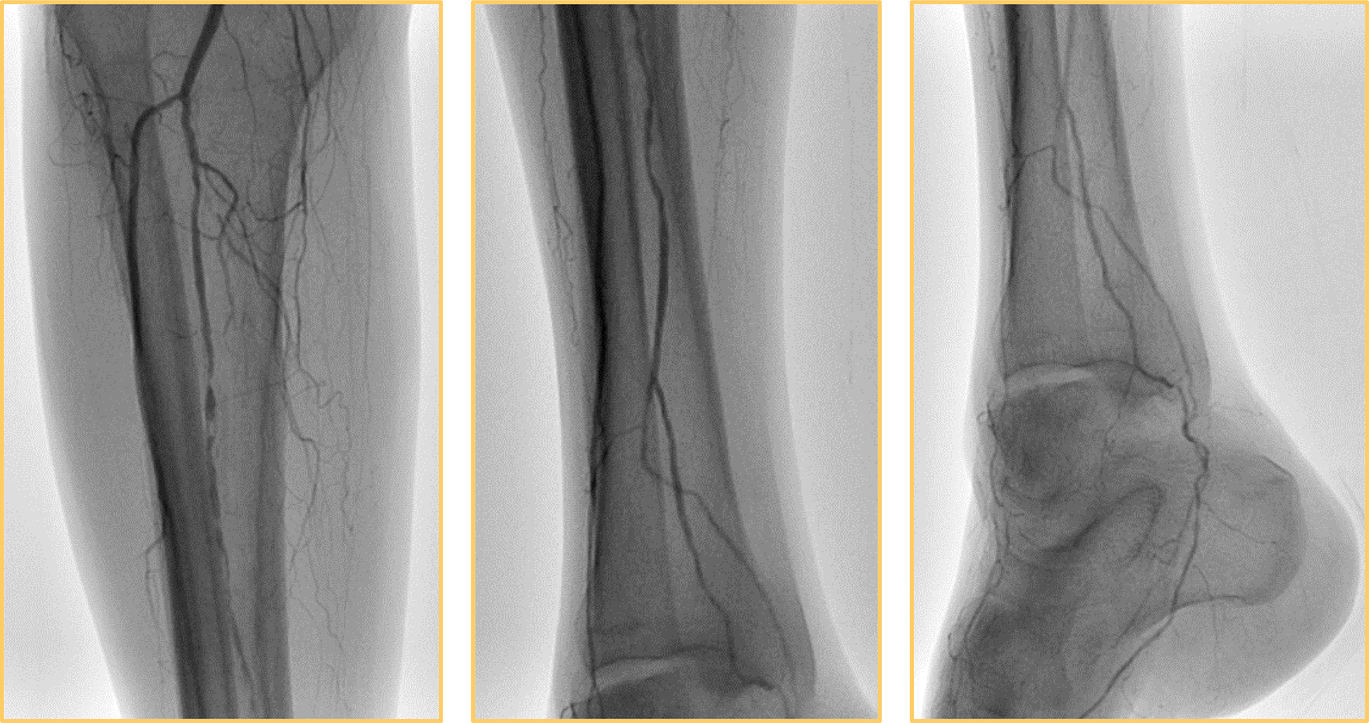 Popliteal-Peroneal Artery Bypass Via The Posterior