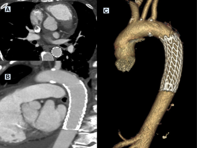 Endovascular treatment of symptomatic thrombus of the for Aortic mural thrombus treatment